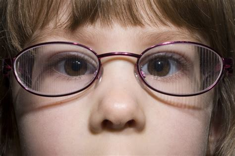 What to expect from Squint Surgery | Blackpool Teaching