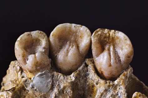Neanderthal Gums Relieved by Toothpicks